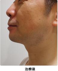 小顔注射(BNLS)治療後