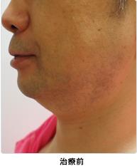 小顔注射(BNLS)治療前