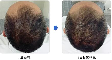 タイプ: M字型 1 ヘアタトゥー(塗るカツラ)治療前 2回目施術後