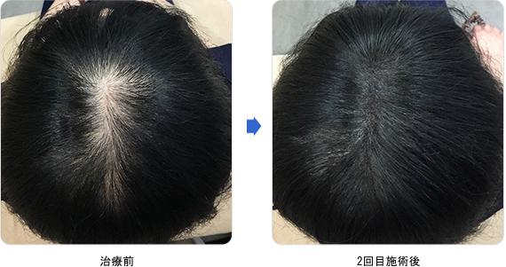 50代女性 ヘアタトゥー(塗るカツラ)治療前 2回目施術後