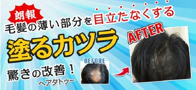 朗報 毛髪の薄い部分を目立たなくする 驚きの改善