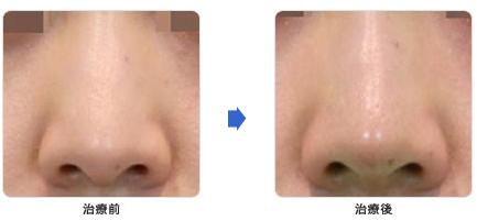 鼻の治療前と治療後の写真1