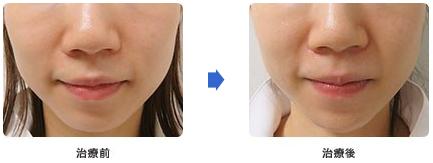 あごの治療前と治療後の写真