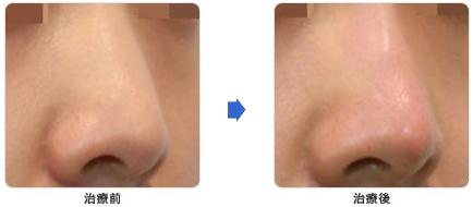 鼻の治療前と治療後の写真2
