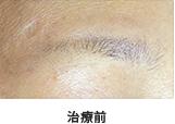 眉のメディカル(医療)アートメイク治療前
