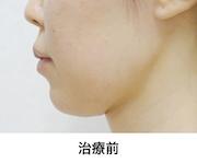 二重あご 1回治療(治療後60日)治療前