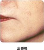 扁平母斑(茶アザ)治療後