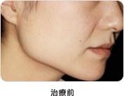 小顔効果治療前