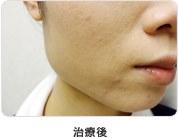 小顔効果治療後