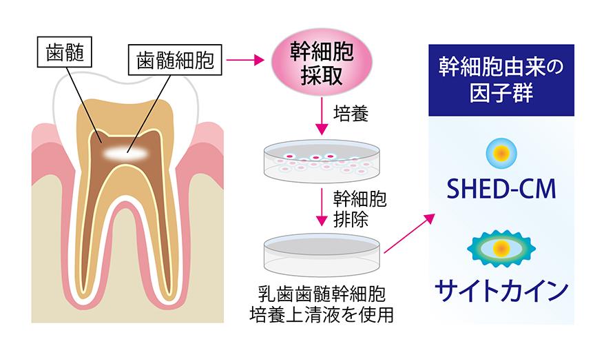 乳歯歯髄幹細胞培養上清液の治療のメカニズム