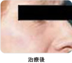 下眼瞼脱脂術治療後