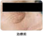 下眼瞼脱脂術治療前