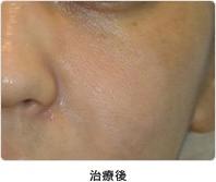 頬の毛穴 5回治療治療後