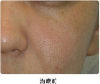 頬の毛穴 5回治療治療前
