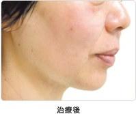 頬のたるみ 5回治療治療後