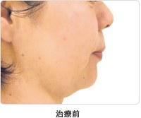 頬のたるみ 5回治療治療前