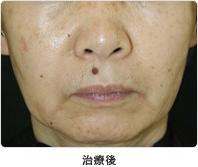 頬のたるみ・小ジワ 5回治療治療後
