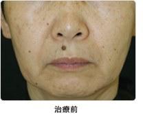 頬のたるみ・小ジワ 5回治療治療前