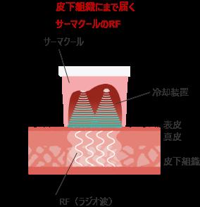 サーマクールボディのメガニズム1