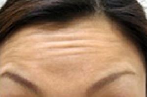 症例写真-ヒアルロン酸注入施術前