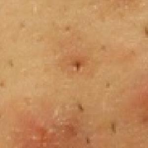 黒ニキビの症状
