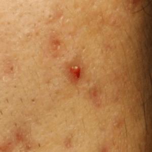 赤ニキビの症状