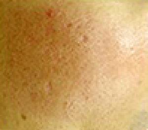 レーザー治療・光治療・注入治療 治療後