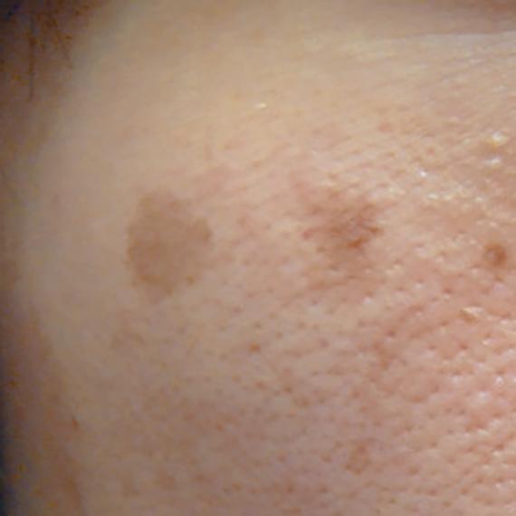 老人性色素斑(日光性色素斑)の画像
