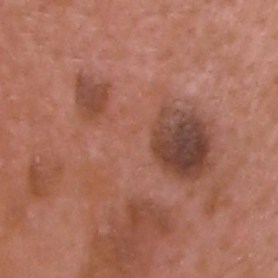 脂漏性角化症(老人性いぼ)の画像