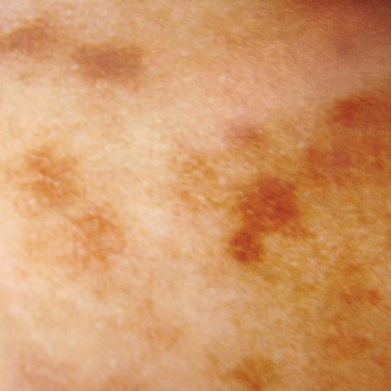 ADM(後天性真皮メラノサイトーシス)の画像