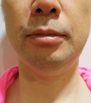 小顔注射(BNLS) 治療前