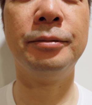 小顔注射(BNLS) 治療後