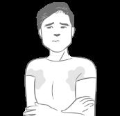 ワキガ・多汗症